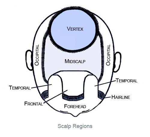 Figure8_Scalp_Regions_Bekki