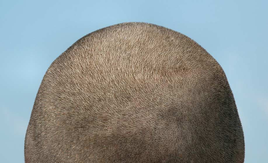 Spectral.DNC-L may promote hair growth in men with male patterned hair loss.