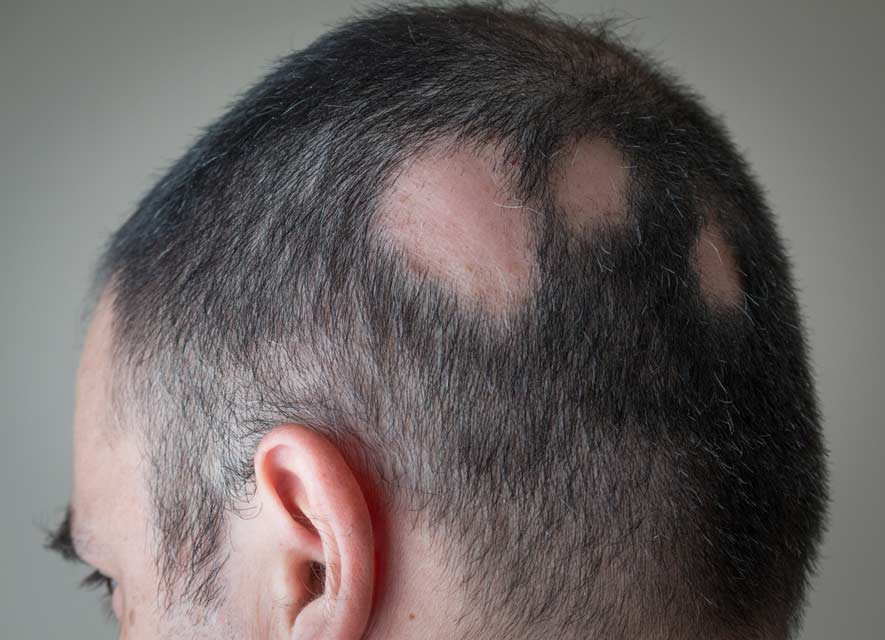 Typically alopecia areata presents as patchy hair loss.