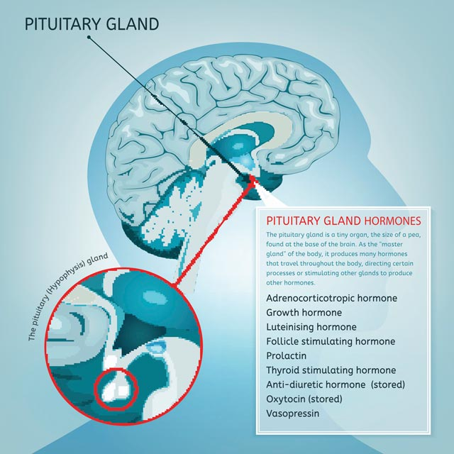 Cushing disease is caused by noncancerous tumors in the pituitary gland.