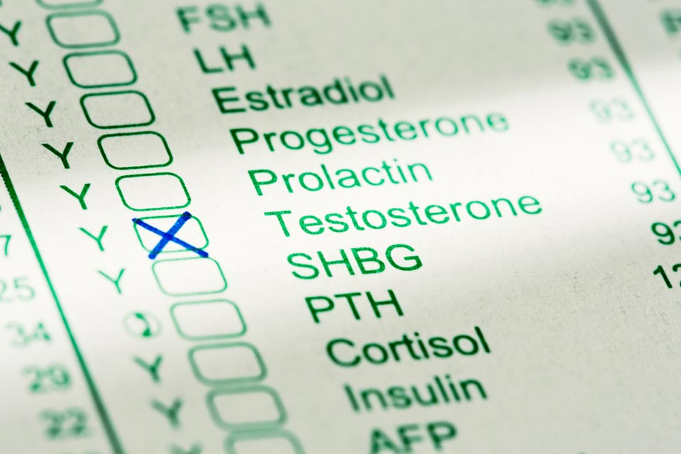 What promotes conversion of free testosterone to DHT?