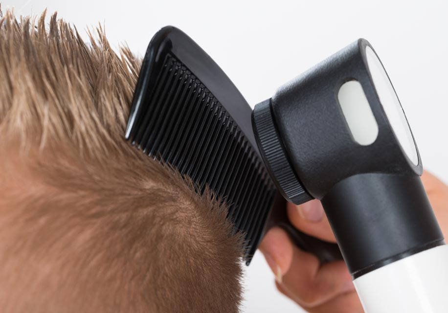 Examining the scalp with a dermatoscope is one method of diagnosing hair loss.