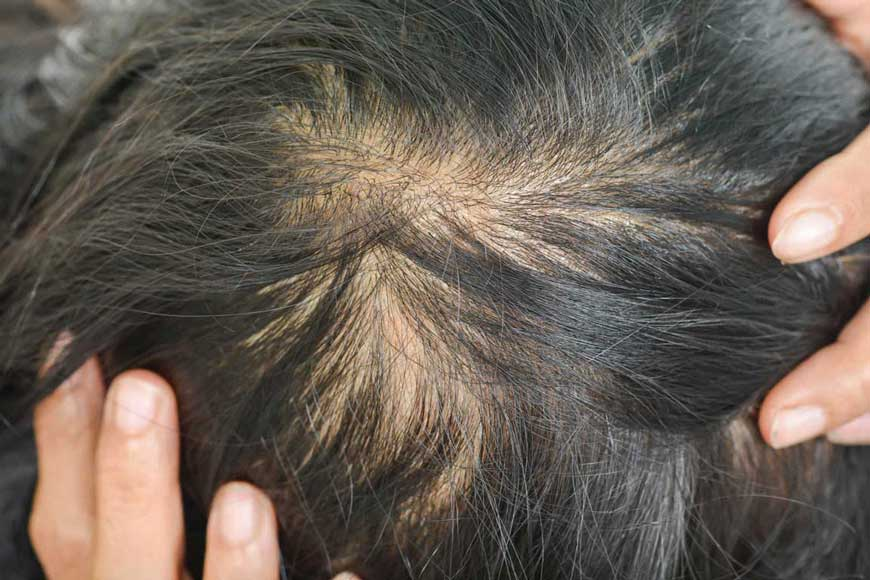 If you have female pattern hair loss, avoid these supplements.