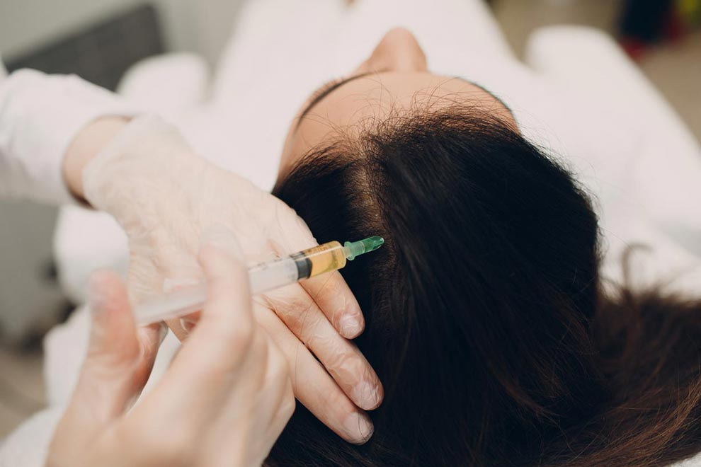 Using mesotherapy and minoxidil may help regrow hair in women with thinning hair.
