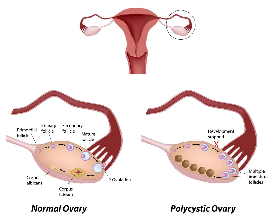 thinning_hair_polycystic_ovary