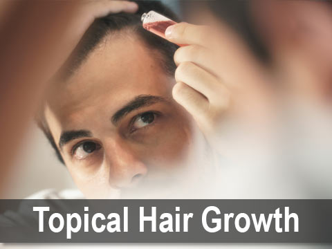 Topical Hair Growth Treatments